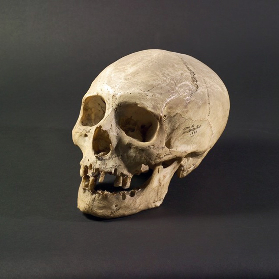Crâne d'homo sapiens, collections du muséum de Toulouse