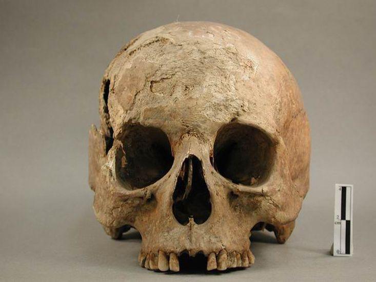 Homo sapiens sapiens, crâne, collections du muséum de Toulouse
