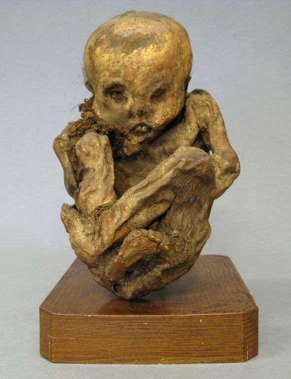Momie colombienne, restes humains, fibres textiles, collections du muséum de Toulouse