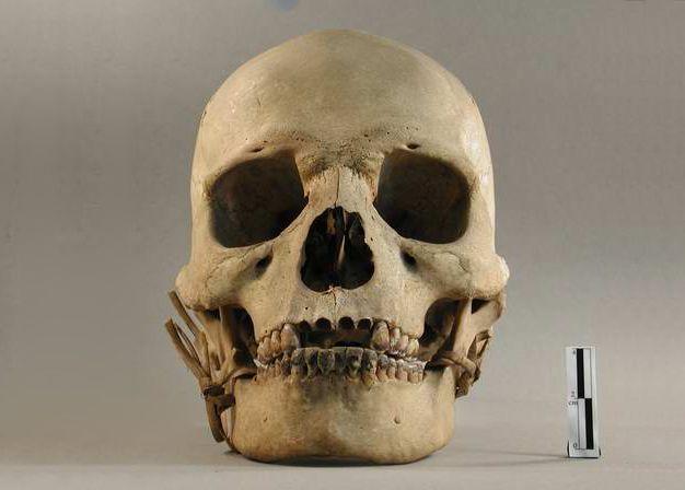 Crâne humain donné au muséum par Jean Moura, représentant du protectorat français au Cambodge de 1876 à 1877, collections du muséum de Toulouse